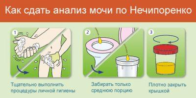 Анализ мочи по Нечипоренко: как собирать и сдавать, что показывает, расшифровка у взрослых